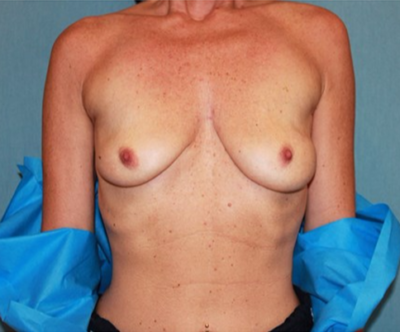 Breast Lift Gallery - Patient 10894507 - Image 1