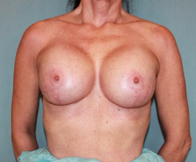 Breast Lift Gallery - Patient 10894507 - Image 2