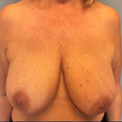 Breast Reduction Gallery - Patient 13947202 - Image 1