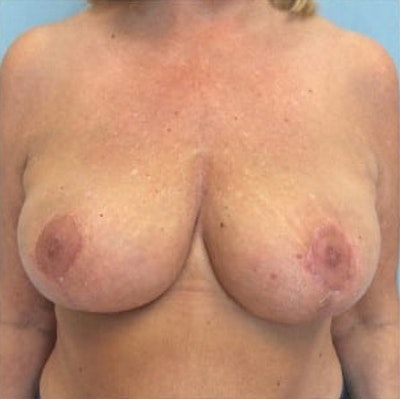 Breast Reduction Gallery - Patient 13947202 - Image 2