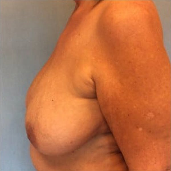 Breast Reduction Gallery - Patient 13947202 - Image 3