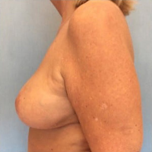 Breast Reduction Gallery - Patient 13947202 - Image 4