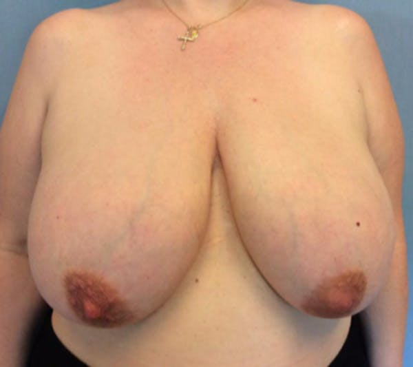 Breast Reduction Gallery - Patient 13947203 - Image 1