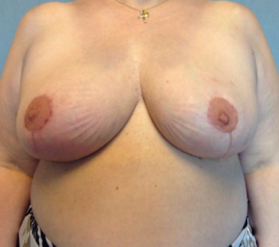 Breast Reduction Gallery - Patient 13947203 - Image 2