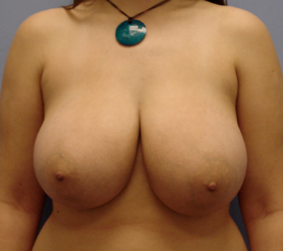 Breast Reduction Gallery - Patient 13947204 - Image 1