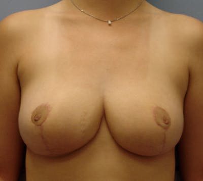 Breast Reduction Gallery - Patient 13947204 - Image 2