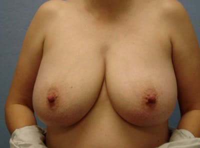 Breast Reduction Gallery - Patient 13947205 - Image 1