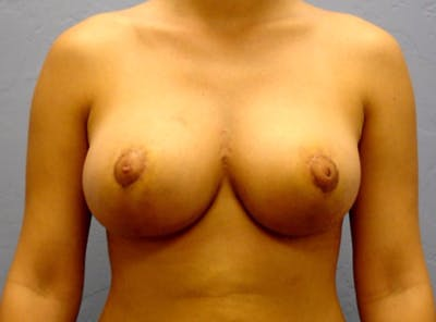 Breast Reduction Gallery - Patient 13947205 - Image 2