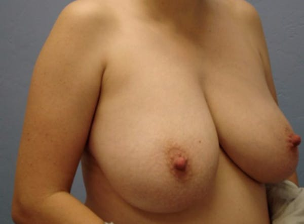 Breast Reduction Gallery - Patient 13947205 - Image 3