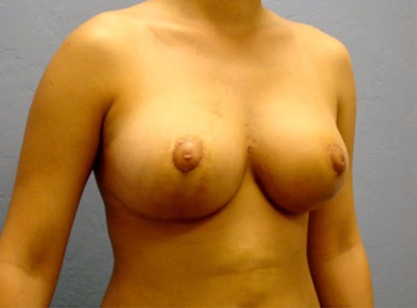 Breast Reduction Gallery - Patient 13947205 - Image 4
