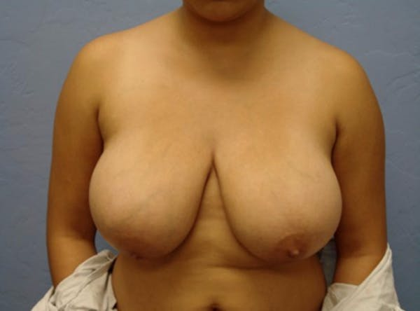Breast Reduction Gallery - Patient 13947206 - Image 1