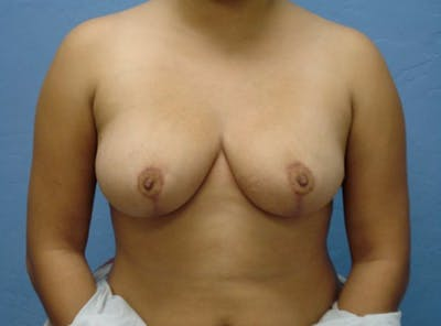 Breast Reduction Gallery - Patient 13947206 - Image 2