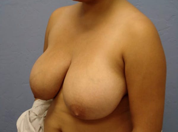 Breast Reduction Gallery - Patient 13947206 - Image 3