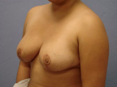 Breast Reduction Gallery - Patient 13947206 - Image 4