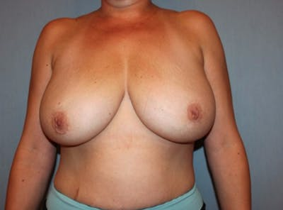 Breast Reduction Gallery - Patient 13947207 - Image 1