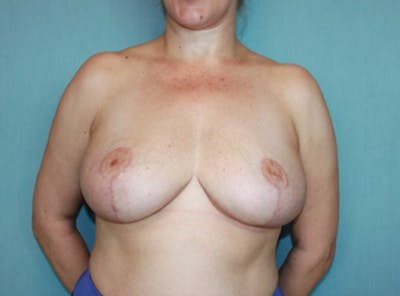 Breast Reduction Gallery - Patient 13947207 - Image 2