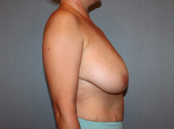 Breast Reduction Gallery - Patient 13947207 - Image 3