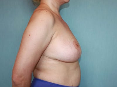 Breast Reduction Gallery - Patient 13947207 - Image 4
