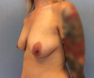Breast Lift Gallery - Patient 10894543 - Image 1