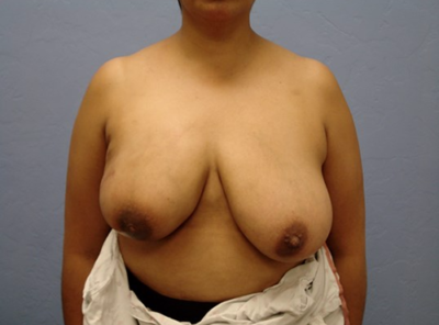 Breast Reduction Gallery - Patient 13947208 - Image 1