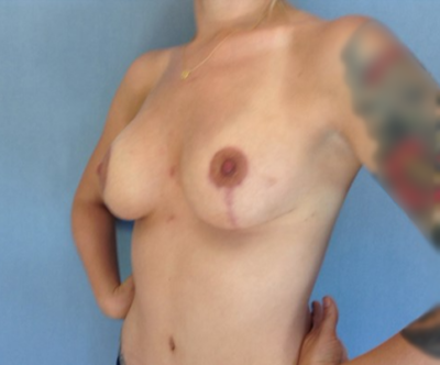 Breast Lift Gallery - Patient 10894543 - Image 2