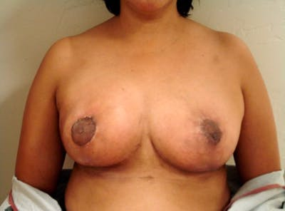 Breast Reduction Gallery - Patient 13947208 - Image 2