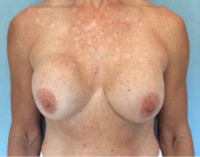 Breast Lift Gallery - Patient 10894545 - Image 1