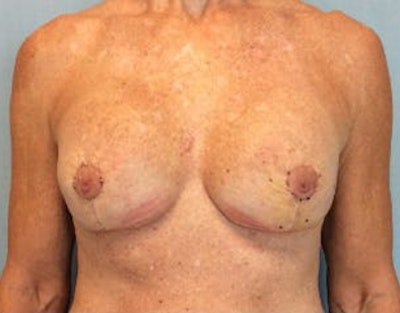 Breast Lift Gallery - Patient 10894545 - Image 2