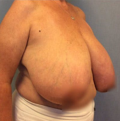 Breast Reduction Gallery - Patient 13947209 - Image 1