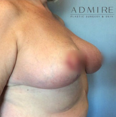 Breast Reduction Gallery - Patient 13947209 - Image 2