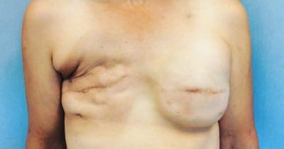 Breast Reconstruction Gallery - Patient 10894620 - Image 1