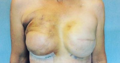 Breast Reconstruction Gallery - Patient 10894620 - Image 2