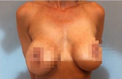 Breast Reconstruction Gallery - Patient 10894621 - Image 1
