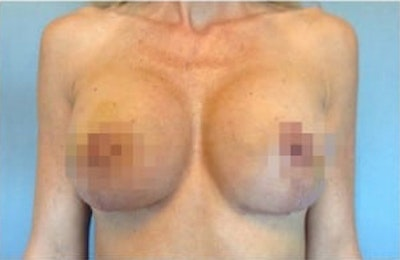 Breast Reconstruction Gallery - Patient 10894621 - Image 2