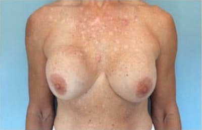 Breast Reconstruction Gallery - Patient 10894622 - Image 1