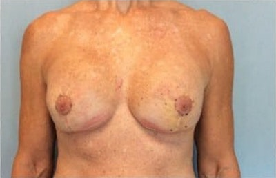Breast Reconstruction Gallery - Patient 10894622 - Image 2