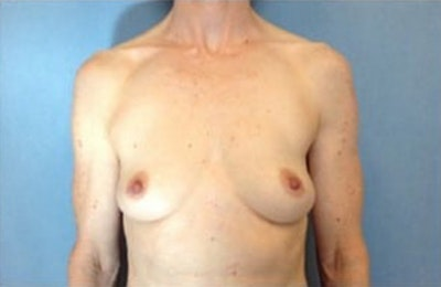Breast Reconstruction Gallery - Patient 10894627 - Image 1