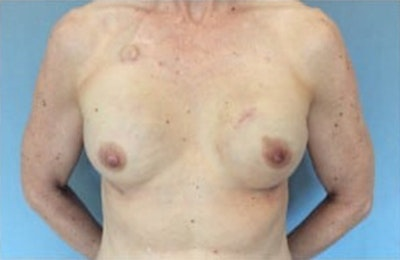 Breast Reconstruction Gallery - Patient 10894627 - Image 2