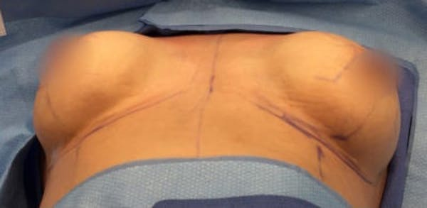 Breast Implant Revision Gallery - Patient 13947231 - Image 1