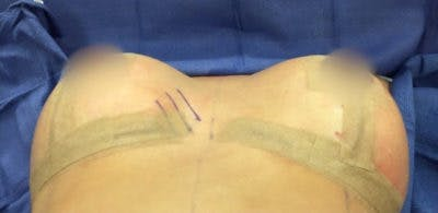 Breast Implant Revision Gallery - Patient 13947231 - Image 2