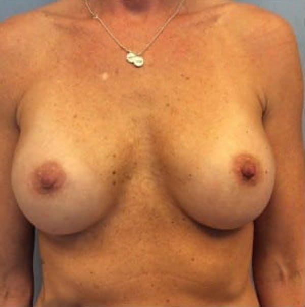 Breast Implant Revision Gallery - Patient 13947232 - Image 1