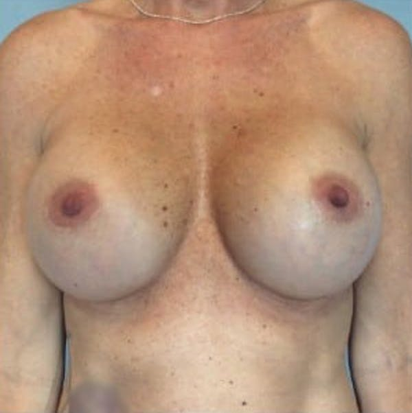 Breast Implant Revision Gallery - Patient 13947232 - Image 2