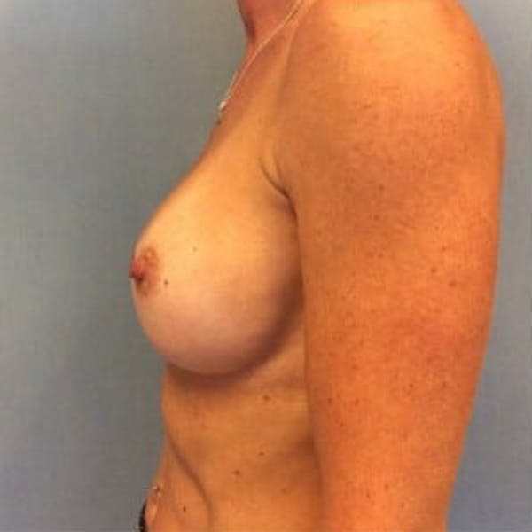 Breast Implant Revision Gallery - Patient 13947232 - Image 3