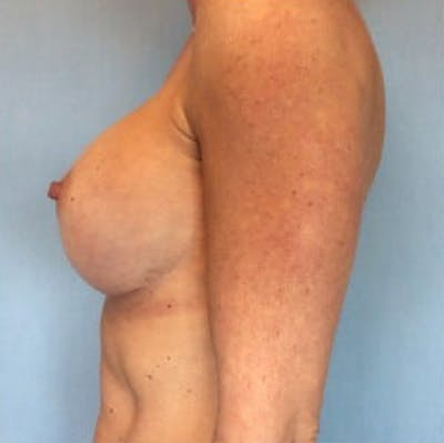Breast Implant Revision Gallery - Patient 13947232 - Image 4