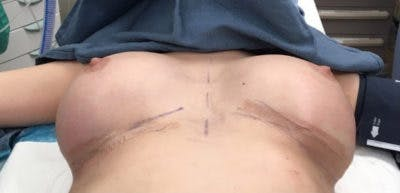Breast Implant Revision Gallery - Patient 13947233 - Image 2