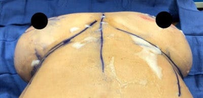 Breast Implant Revision Gallery - Patient 13947234 - Image 1