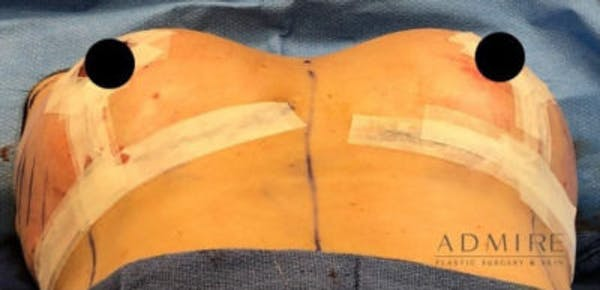 Breast Implant Revision Gallery - Patient 13947234 - Image 2