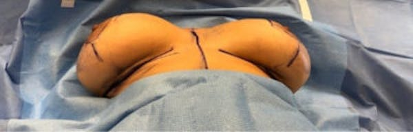 Breast Implant Revision Gallery - Patient 13947235 - Image 1