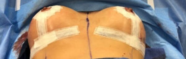 Breast Implant Revision Gallery - Patient 13947235 - Image 2