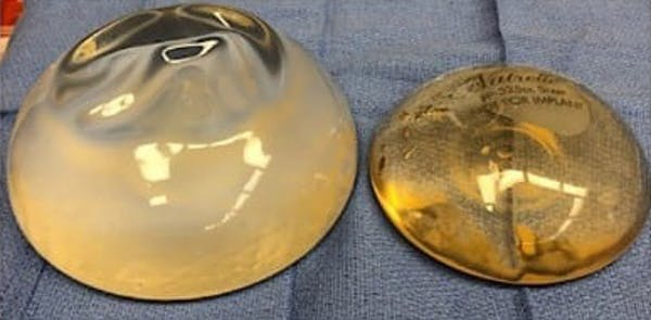 Breast Implant Revision Gallery - Patient 13947235 - Image 3